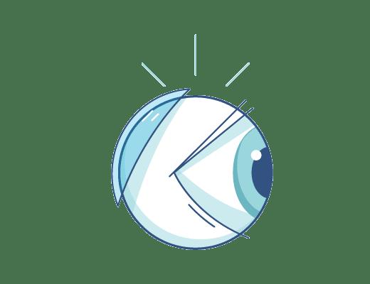 隱形眼鏡在眼球後方